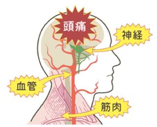 頭痛の原因は首のコリと血行不良です。