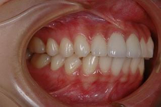 出っ歯の治療 述語