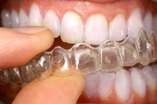 Bild: Zahnspange, Hamburg, schiefe Zähne, Zahnkorrektur, Invisalign