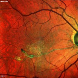 Gefässverschluss mit epiretinaler Gliose