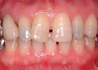 歯の位置異常と形態異常が原因の審美障害