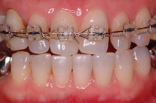 歯の位置異常は矯正治療で改善