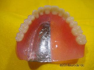 金属床義歯と保険適応の比較模型写真