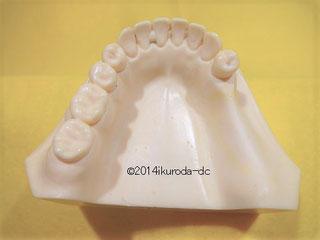 症例見本(3歯欠損)の写真