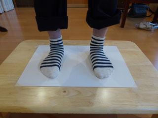 モートン病の足