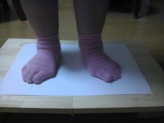 外反母趾、偏平足の足