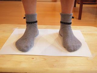 ハイアーチ、外反母趾の足