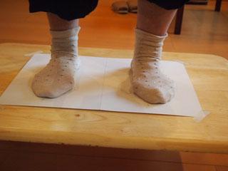 外反母趾の足