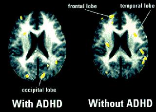 Uso en el TDAH