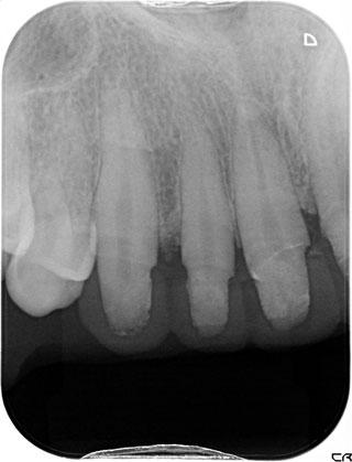 歯周病の方のための審美歯科治療