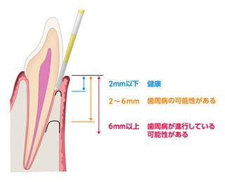 歯周ポケットの模式図