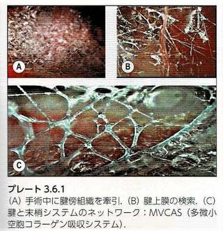 MVCAS:多微小空胞コラーゲン吸収システム