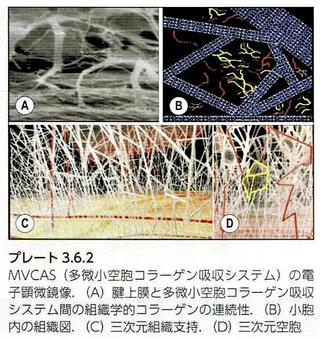 MVCASの電子顕微鏡像