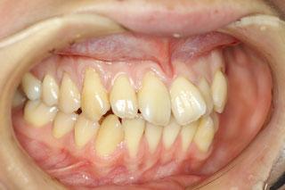 歯茎が下がったときの矯正治療