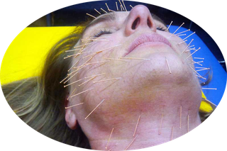 Biolifting oder Akupunktur-Liftung: Dünne Nadeln regen die  natürliche Durchblutung an.