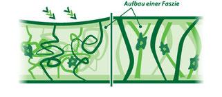 links: funktionsgestörte Faszie, rechts: gesunde Faszie (modellhaft dargestellt).