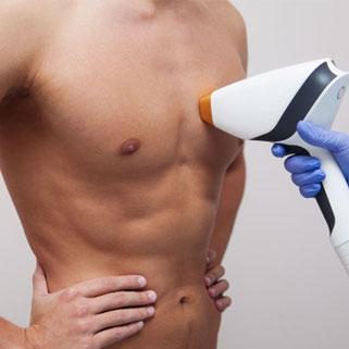 Epilazione laser Schiena Petto Uomo Pordenone  centro estetico