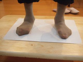 外反母趾、リウマチの足