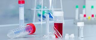 Tubos de reactivos & de centrifugación