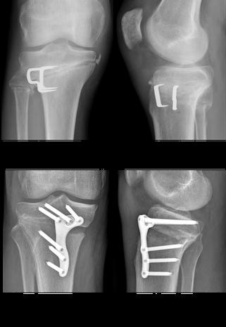 les 2 grands types ostéotomie du genou
