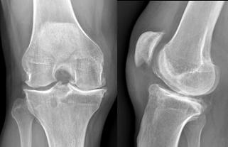 rotura vieja del LCA : artritis. cirugia ortopedica Toulouse Dr Rémi StJean du Languedoc La Croix du Sud