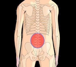 腰部脊柱管狭窄症の狭窄範囲(L3~L5)に多くみられます。