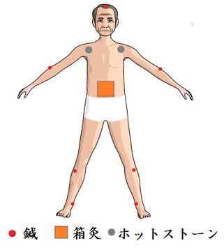 帯状疱疹後神経痛施術例(前面)