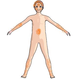 刺激部位の説明図