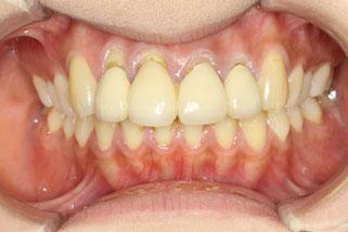 治療前の歯茎が下がった状態