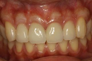 歯茎再生と審美歯科