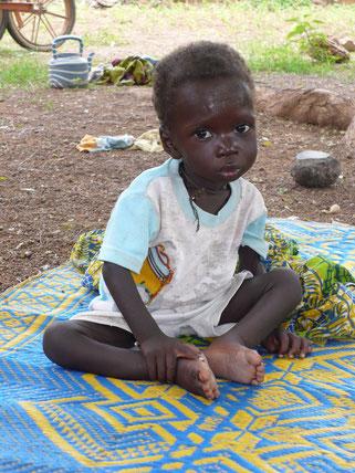 Enfant sous-nutri pris en charge au CREN de Nandiala