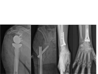 fractures ostéoporose, Dr Rémi, Toulouse, chirurgie orthopédique, Croix du Sud