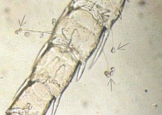 Garnelenlarve mit Glockentierchenbefall. Ein starker Befall kann die Larven bei der Häutung behindern.