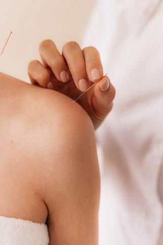 TCM - Akupunktur - Heilpraktikerin Marion Niemeyer Olfen