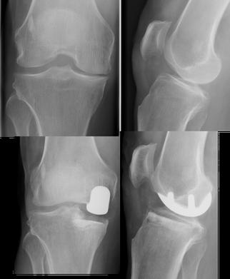 Douleur latéralisée, plus de cartilage. Pas de contre-indication (surpoids, défaut d'axe, instabilité).     Indication de prothèse unicompartimentale