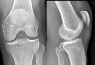 genou sans rupture du LCA croisés, Dr Rémi chirurgie orthopédique Toulouse
