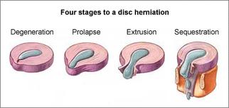 ゲル状物質が神経根に圧力をかけヘルニアが発生