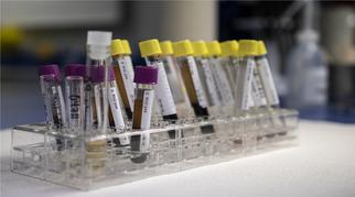 Es werden Blutabnahmeröhrchen für die Laboruntersuchung von Blut gezeigt.