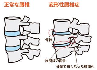 変形性腰椎症絵図