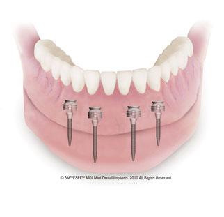 Unterkieferprothese braucht 4 Mini-Implantate, Zahnarztpraxis, Augsburg-Lechhausen (© 3M Espe MDI Mini Dental Implants)