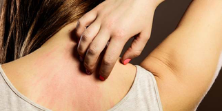 Histamin kann ein Auslöser sein. Auch die Laktose und die Fruktose machen häufig Probleme