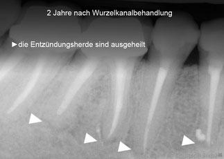 thermoplastische Wurzelfüllungen