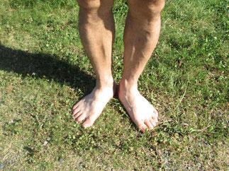 足首にかけての違和感の原因はねんざ足とカカトのゆがみ