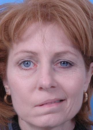 Gesichtslähmung Wikimedia pub. domain, S. Campell