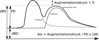 Pulswelle bei sehr jungen Patienten und niedriger PWV (grobe Skizze zur Illustration, eine zusätzliche Zacke, die durch den Verschluss der Aortenklappe verursacht wird, ist weggelassen worden).