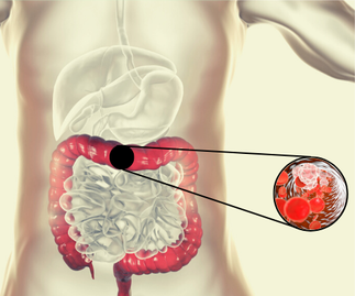 Intestinal Inflammation Research, Department of Gastroenterology and Hepatology  University Hospital Zurich