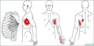 前鋸筋トリガーポイントは息切れ,喘息症状