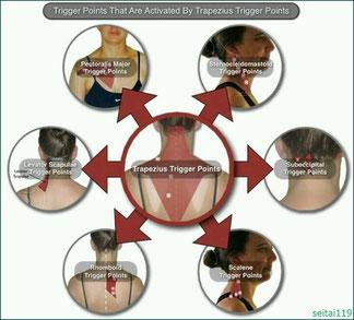 トリガーポイント療法