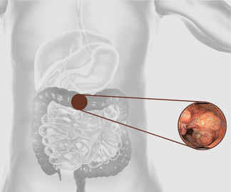Colorectal cancer research, Department of Gastroenterology and Hepatology  University Hospital Zurich