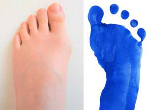 足の美容 外反母趾 美容 らいふ治療院